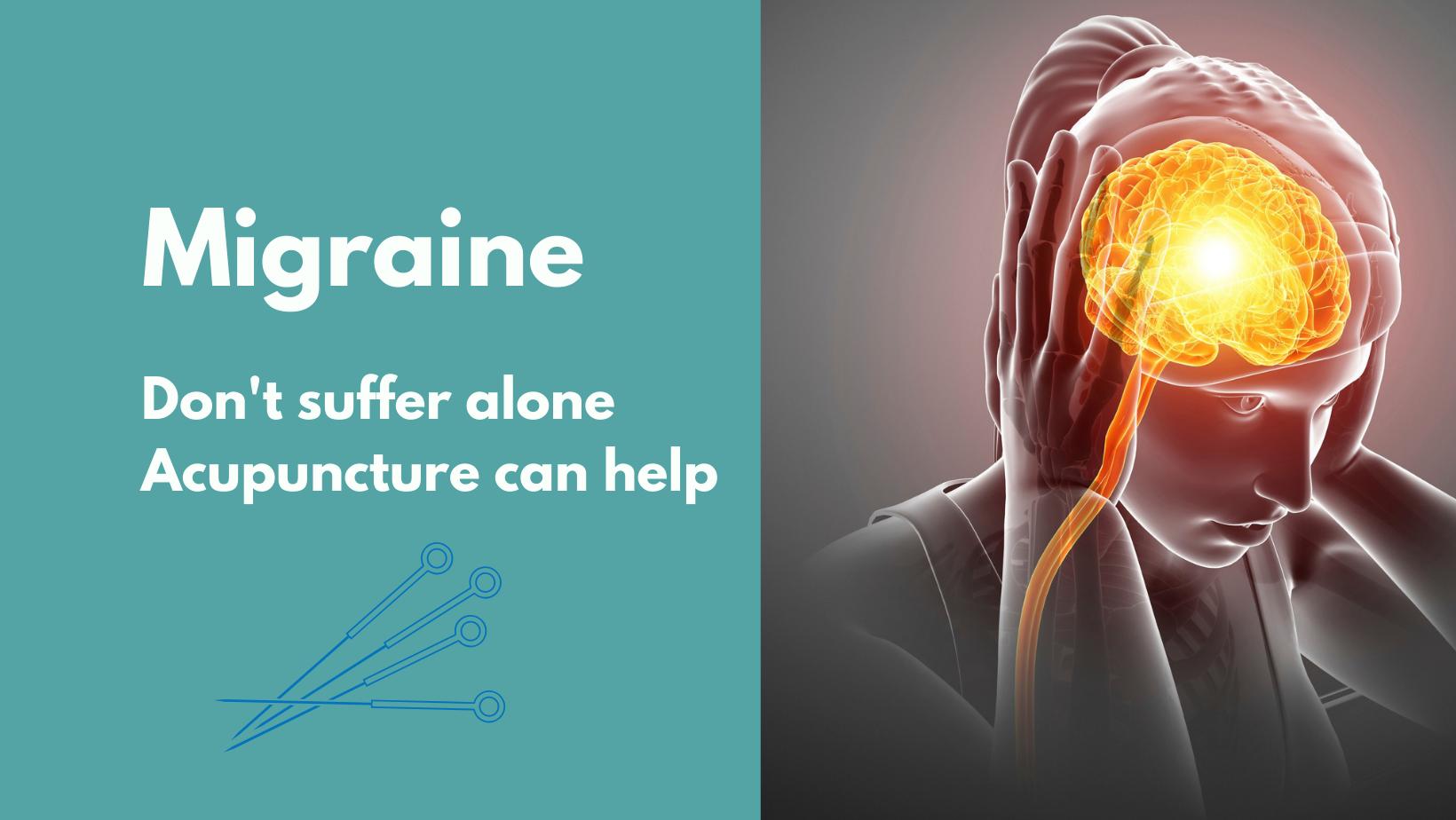 Acupuncture Can Treat Migraine